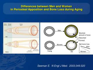 Differences between Men and Women  in Periosteal Apposition and Bone Loss during Aging