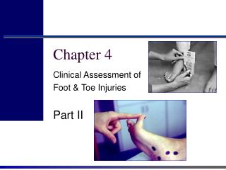 Clinical Assessment of  Foot  Toe Injuries  Part II