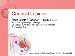 Cervical Lesions