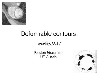 Deformable contours