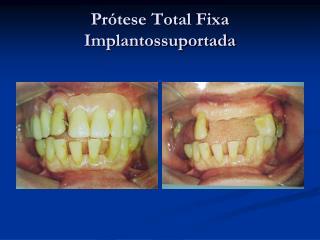 Prótese Total Fixa Implantossuportada
