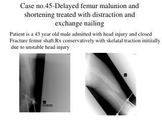 Case no.45-Delayed femur malunion and shortening treated with distraction and exchange nailing