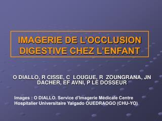 IMAGERIE DE L'OCCLUSION DIGESTIVE CHEZ L'ENFANT