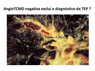 AngioTCMD negativa exclui o diagnóstico de TEP  ?