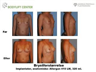 Brystforst�rrelse Implantater, anatomiske: Allergan 410 LM, 320 ml.