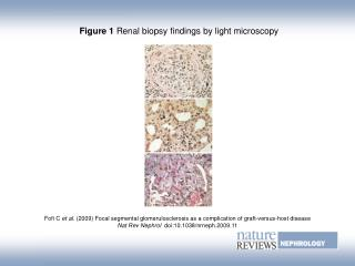 Figure 1  Renal biopsy findings by light microscopy