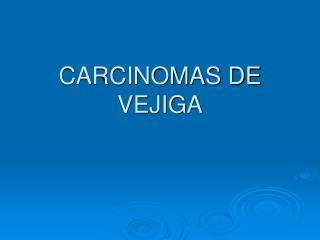CARCINOMAS DE VEJIGA