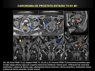 CARCINOMA DE PRÓSTATA ESTADIO T4 N1 M1