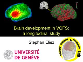 Brain development in VCFS: a longitudinal study