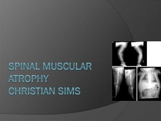Spinal Muscular Atrophy CHRISTIAN SIMS