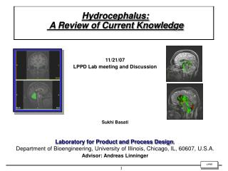 Hydrocephalus:  A Review of Current Knowledge