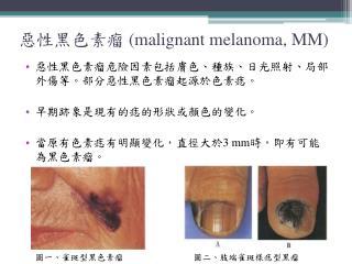 惡性黑色素瘤  (malignant melanoma, MM)