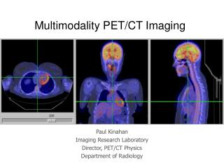 Multimodality PET/CT Imaging