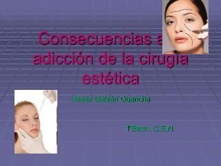 Consecuencias a la adicci�n de la cirug�a est�tica