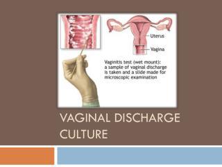 Vaginal discharge culture