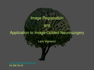 Image Registration and  Application to Image-Guided Neurosurgery Lara Vigneron
