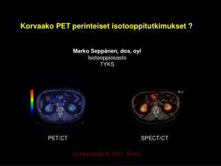 Marko Seppänen, dos, oyl Isotooppiosasto  TYKS