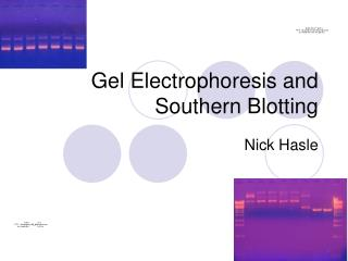 Gel Electrophoresis and Southern Blotting