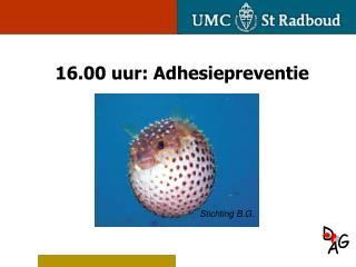 16.00 uur: Adhesiepreventie