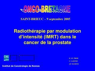 Radioth rapie par modulation d intensit  IMRT dans le cancer de la prostate