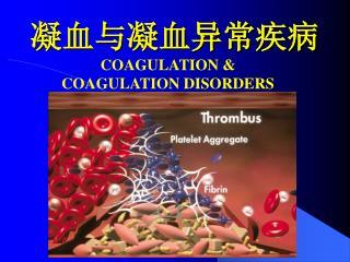 凝血与凝血异常疾病
