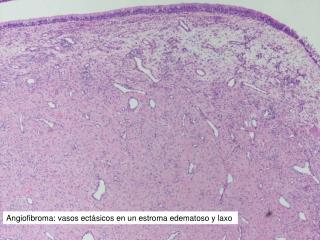 Angiofibroma: vasos ectásicos en un estroma edematoso y laxo