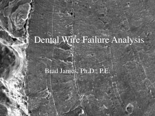 Dental Wire Failure Analysis