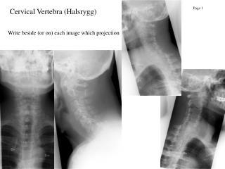 Cervical Vertebra (Halsrygg)