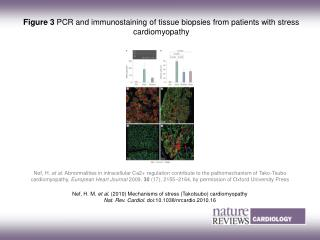 Figure 3  PCR and immunostaining of tissue biopsies from patients with stress cardiomyopathy
