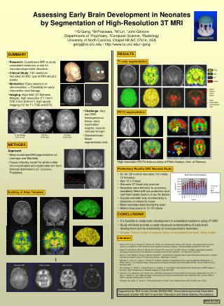Assessing Early Brain Development in Neonates by Segmentation of High-Resolution 3T MRI