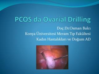 PCOS da  Ovarial Drilling