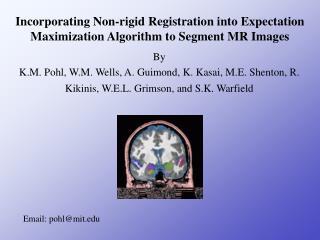 Incorporating Non-rigid Registration into Expectation Maximization Algorithm to Segment MR Images