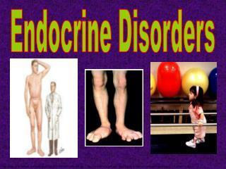 Endocrine Disorders