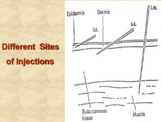 Different  Sites     of Injections