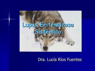 Lupus Eritematoso Sist�mico