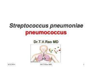 Streptococcus pneumoniae pneumococcus
