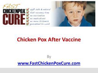 Chicken Pox After Vaccine