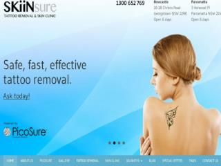 SKiinSure Tattoo Removal & Skin Clinic Newcastle