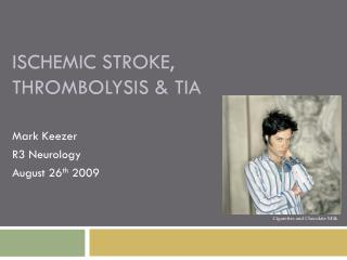 ISCHEMIC STROKE, THROMBOLYSIS & TIA