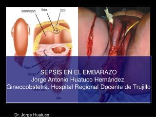 SEPSIS EN EL EMBARAZO Jorge Antonio Huatuco Hern�ndez.