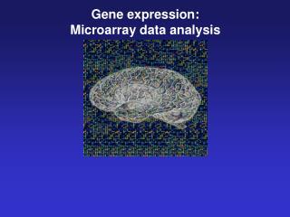 Gene expression: Microarray data analysis