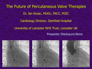 Dr. Jan Kovac, MUDr., FACC, FESC  Cardiology Division, Glenfield Hospital  University of Leicester NHS Trust, Leicester
