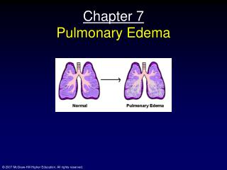 Chapter 7 Pulmonary Edema