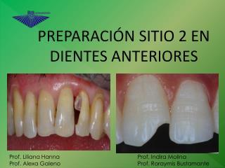 PREPARACIÓN SITIO 2 EN DIENTES ANTERIORES
