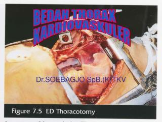 Dr.SOEBAGJO SpB.(K)TKV