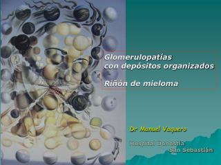 Glomerulopatías  con depósitos organizados Riñón de mieloma