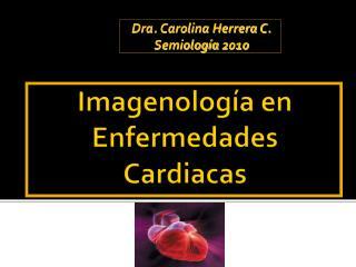 Imagenología  en  Enfermedades Cardiacas