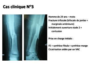 Cas clinique N�3