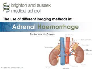 Adrenal Haemorrhage