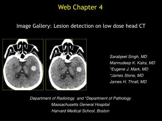 Image Gallery: Lesion detection on low dose head CT